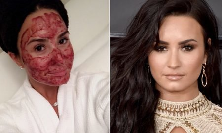 crazy-skin-care-treatments-beauty-routines-of-these-celebrities-will-shock-you